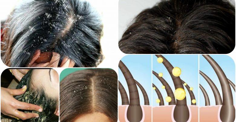 طرق التخلص من قشرة الشعر للأبد مع تقرير عن اسباب واعراض وعلاج القشرة
