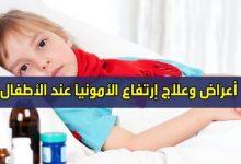 صورة اسباب ارتفاع الامونيا في الدم لدي الاطفال وطرق العلاج
