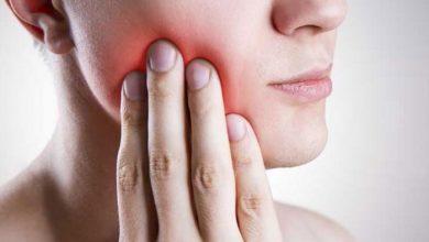 صورة مضاد حيوي لعلاج خراج الاسنان